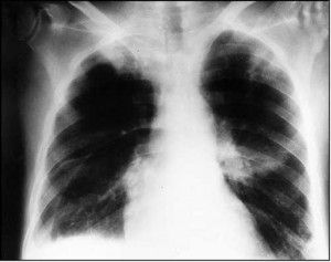 Figure 1. Amiodarone pulmonary