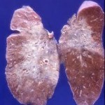 Corticosteroids and azathioprine do not prevent radiation-induced lung injury: DISCUSSION (2)
