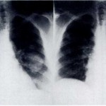 Mucoid Impaction of Upper Lobe Bronchi in the Absence of Proximal Bronchiectasis (2)