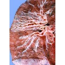 Mucoid Impaction of Upper Lobe Bronchi in the Absence of Proximal Bronchiectasis (3)