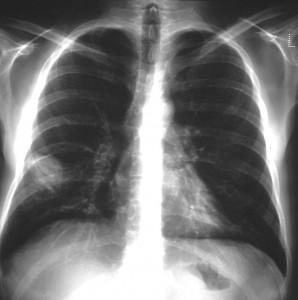 Cytomegalovirus Pneumonia in Allogeneic Bone Marrow Transplantation: Case Report (2)