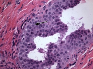 Severe Aortic Regurgitation as a Late Complication of Temporal Arteritis: Discussion (2)
