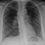 Elevated D Dimer in the Lungs and Blood of Patients With Sarcoidosis (11)