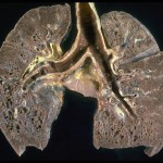 Elevated D Dimer in the Lungs and Blood of Patients With Sarcoidosis (9)