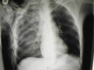 A Comparison of Three Pulmonary Artery Oximetry Catheters in Intensive Care Unit Patients (21)