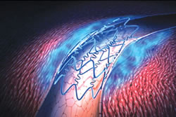 The Role of Coronary Arteriography in Demonstration of Mural Thrombosis after Angioplasty (1)