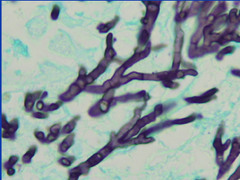 Localized Inflammatory Pulmonary Disease in Subjects Occupationally Exposed to Asbestos (7)